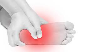Planter Fasciitis Treatment