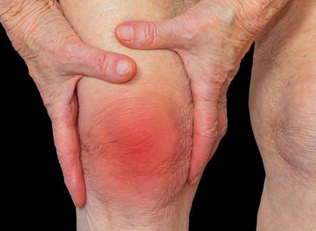 Rheumatoid Arthritis Treatment Birmingham