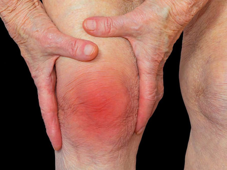 Treatment for rheumatoid arthritis Birmingham and Solihull