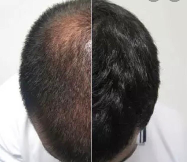 Effective Hair Loss Treatment Birmingham: Finding a Regenerative Solution That Works