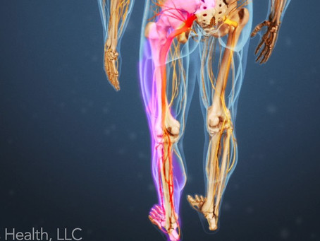 Are you suffering with #sciatica?
