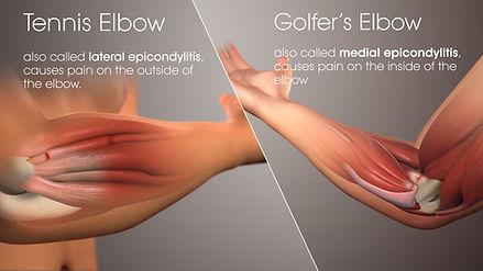 tennis-golf-elbow.jpg