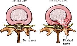 disc-herniation Dyanmic Osteopaths Solihul