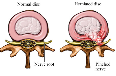 Disc Prolapse (Slipped Disc)