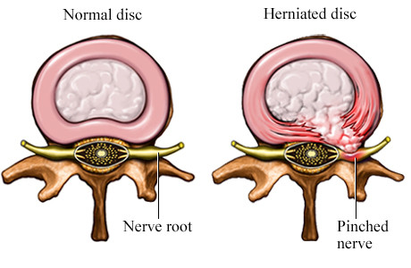 DISC PROLASPE (SLIPPED DISC) Dynamic osteopaths solihull