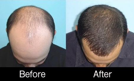 PRP following Hair Transplant