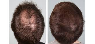 PRP Hair Regrowth Treatment