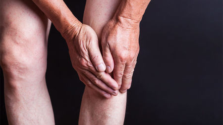 Understanding Arthritis. Knee Arthritis