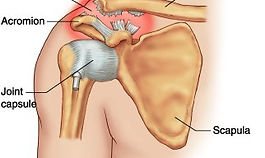 AC joint injury treatment Solihull
