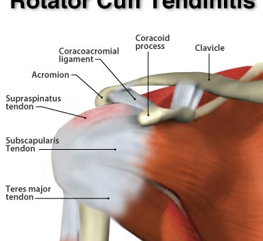 Shoulder Tendinitis: Dynamic Osteopaths