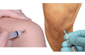 Therapeutic injectables for knee pain. Birmingham & Bromsgrove