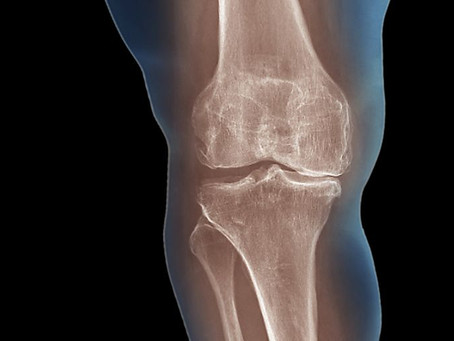 Suffering From Arthritis? How Arthritis Can Be Treated
