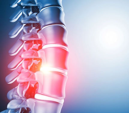 Spinal - Back Pain Treatment Birmingham: Platelet-Rich Plasma (PRP) Vs Corticosteroid Injections