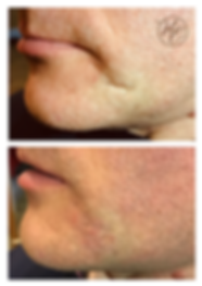 Scar treatment Birmingham and Solihull