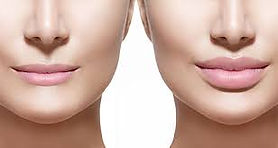 Chin sculpting Solihull Henley-In-Arden