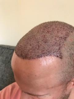 FUE hair transplant. Hair loss treatment Birmingham