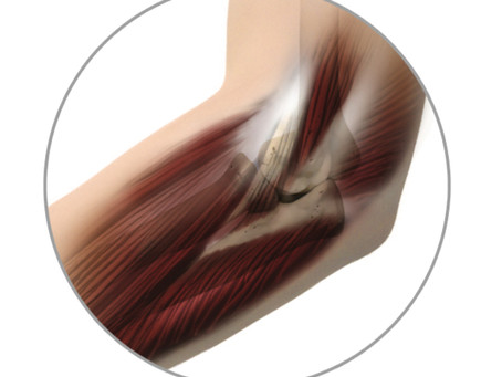 Tennis elbow treatment. Dynamic Osteopaths & Regenerative Medicine Solihull