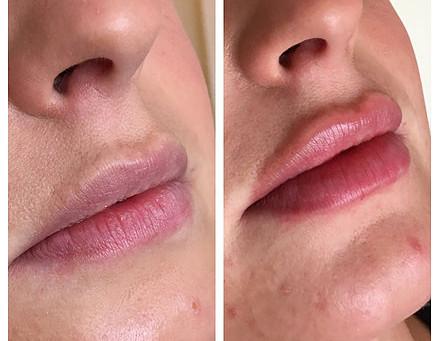 Seeking fuller beautiful lips? Augmentation & Lip Fillers Solihull