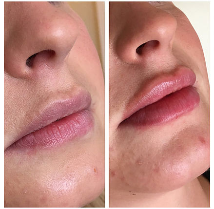Augmentation & Lip Fillers Solihull