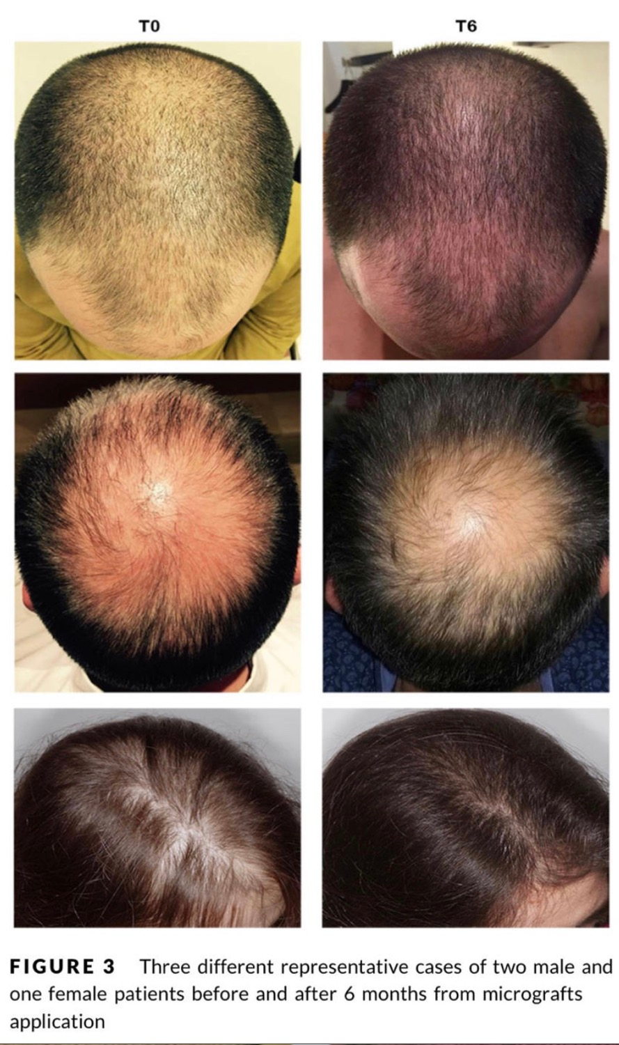 New Advances in Effective Hair Loss Treatment - Progenitor‐cell‐enriched micrografts