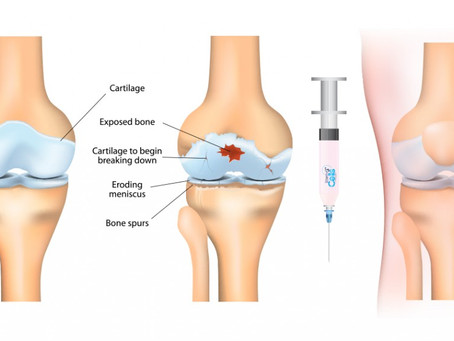 NEW REVIEW ARTICLE SUGGESTS POSITIVE EFFECTS OF PRP PLATELET RICH PLASMA INJECTIONS FOR KNEE OSTEOAR