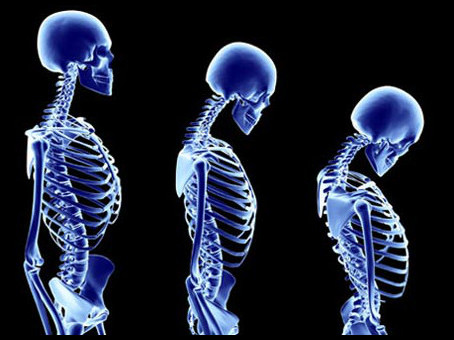 The importance of maintaining good posture for back pain