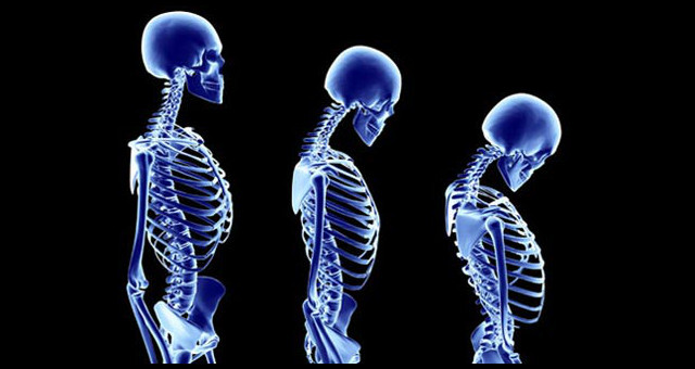 The importance of maintaining good posture for back pain.