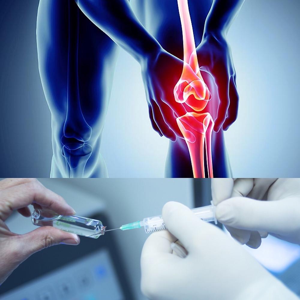 Knee stem cell treatment Birmingham