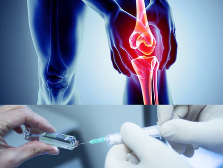 Biostimulation of Knee Cartilage Using Autologous Micro-grafts