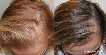 Hair loss treatment Birmingham