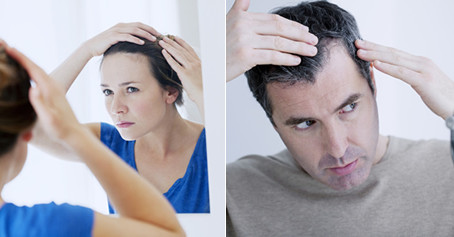 MALE & FEMALE HAIR LOSS TREATMENT BIRMINGHAM