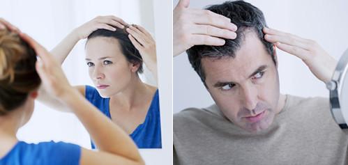 MALE & FEMALE HAIR LOSS TREATMENT BIRMINGHAM