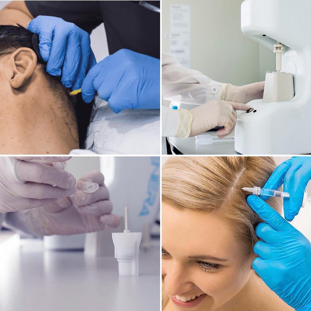 Effective hair loss treatment Birmingham