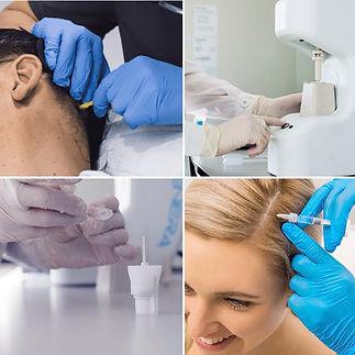 Effective hair loss treatment UK