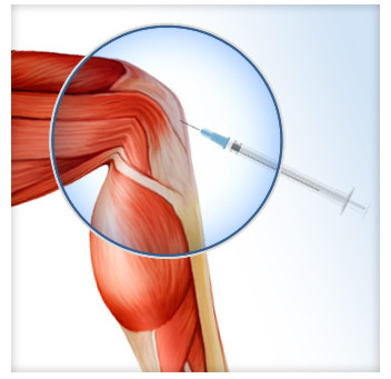 Platelet rich plasma (PRP) treatment showing strong results overall surgery for gluteal tendinopathy