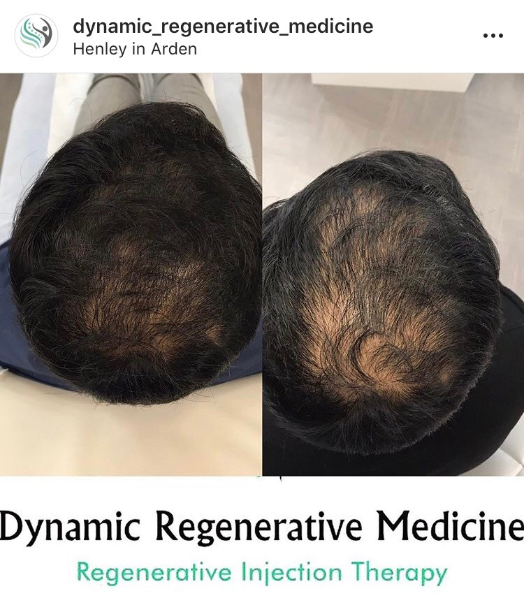 PRP Treatment: Effective NON-SURGICAL Treatment for hair Loss Birmingham