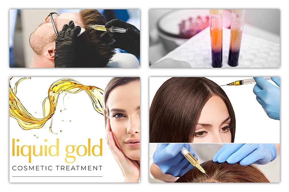 PRP treatment for hair loss Beaconsfield. Just outside London
