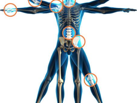 Hyaluronic acid injection treatment for arthritis. Dynamic Osteopaths