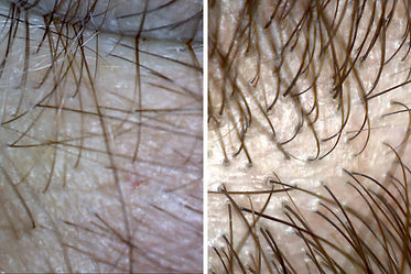 PRP TREATMENT FOR HAIR LOSS BIRMINGHAM