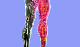 SCIATICA TREATMENT. DYNAMIC OSTEOPATHS SOLIHULL