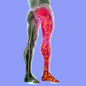 SCIATICA Dynamic Osteopaths Solihull