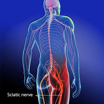 Sciatica & You: Is Piriformis Syndrome the Same Thing as Sciatica?