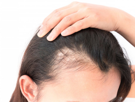 Hair loss: Most common causes and best treatment tips. Dynamic Regenerative Medicine