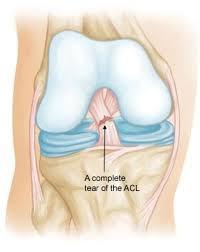 Knee - Cruciate ligament injury