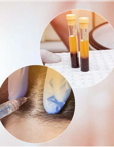 Platelet-Rich Plasma (PRP) Compared with Minoxidil®, Finasteride®, and Stem Cell for Hair Loss