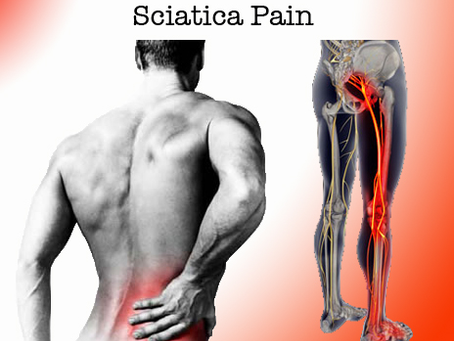 Osteopathy For The Treatment of Sciatica – Sciatica Treatment – Trapped Nerve Treatment