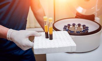 Platelet Rich Plasma (PRP) Treatment & Microneedlingfor Scarring and Acne Scars Birmingham