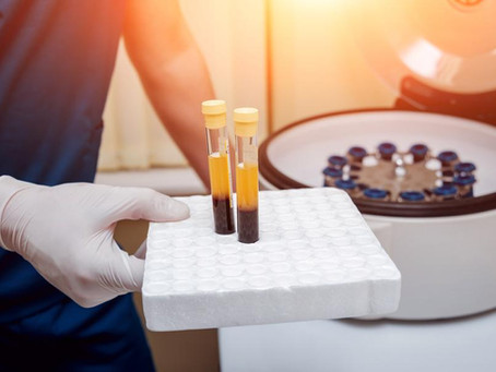 Does platelet rich plasma (PRP) need to be activated?