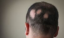 Treatment for hair loss Birmingham Uk