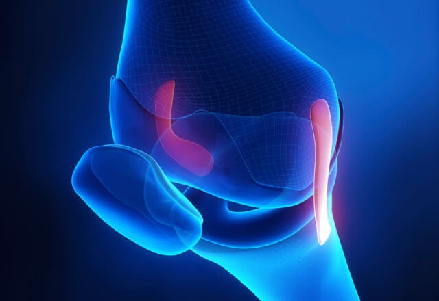 Treatment for knee pain and osteoarthritis Birmingham